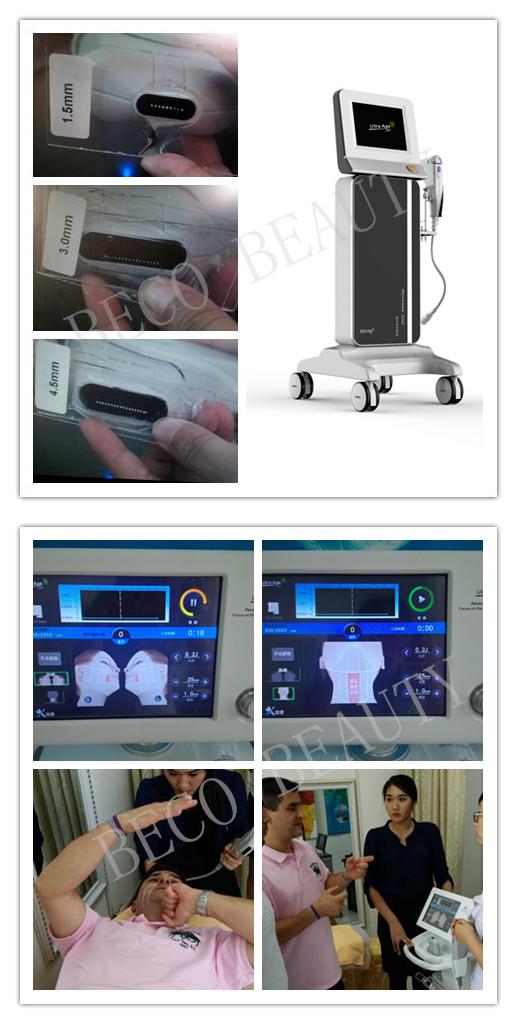 Hifu Medical Beauty Equipment for Skin Care (FU4.5-5S)