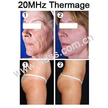 Fractional RF Skin Resurfacing Wrinkle Removal Beauty Equipment