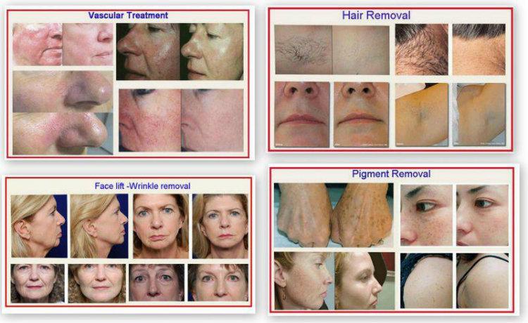 Hair Removal Super IPL Laser Shr Machine / Opt Shr Beauty Equipment