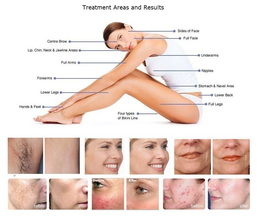 IPL Hair Removal Beauty Machine for Skin Care