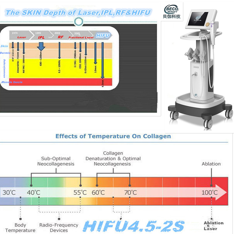 Hifu Focused Ultrasound Skin Rejuvenation Beauty Machine (FU4.5-2S)
