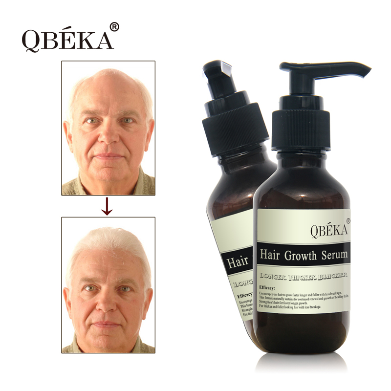 Effective Anti Hair Loss Qbeka Hair Regrowth Serum