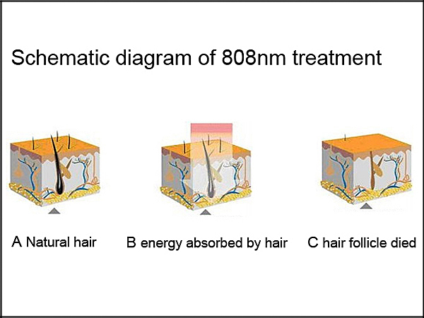 Highly Effective Diode Laser Hair Removal Machine Price / Hair Remove