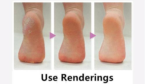 Fast Grinding Peeled Foot