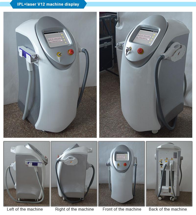 IPL Vascular Removal + ND YAG Laser Melasma Removal Equipment