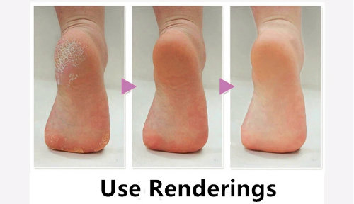 Simple Easy and Comfortable Wear Foot Callus Remover