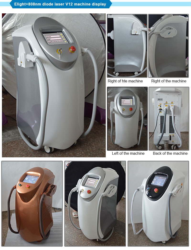 2017 Top Selling Elight+808nm Diode Laser Hair Removal with Skin Rejuvenation (12bars)