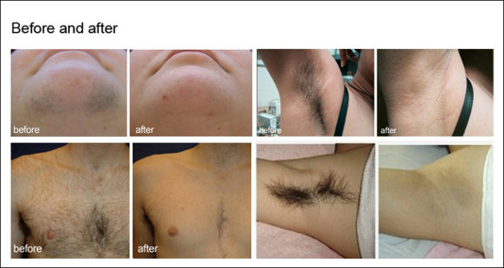 Diode Laser 808nm Hair Removal