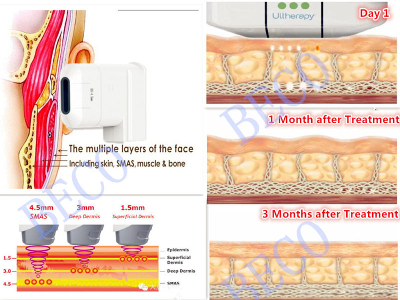 2014 Hifu Face Lifting Wrinkle Removal Hifu Beauty Machine (FU4.5-10S)