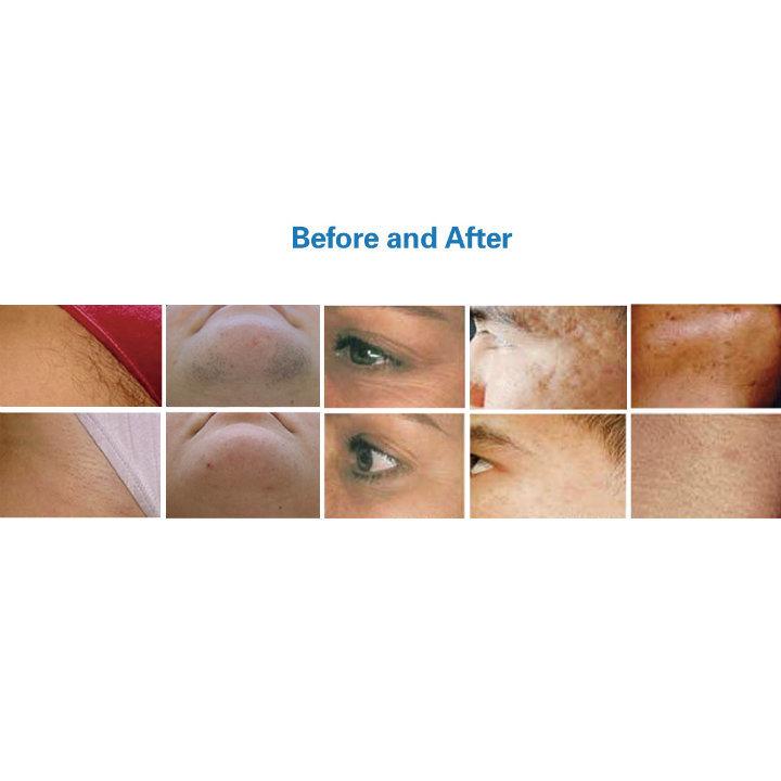 Good Effect IPL for Hair Removal Skin Rejuvenation White