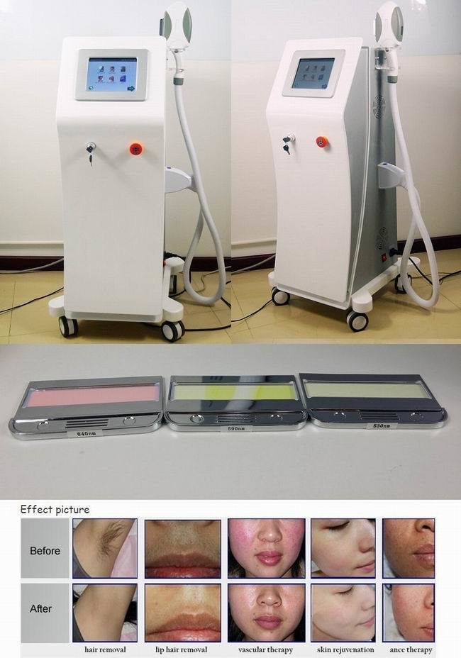 IPL Opt Shr Hair Removal Machine Hair Removal for Men