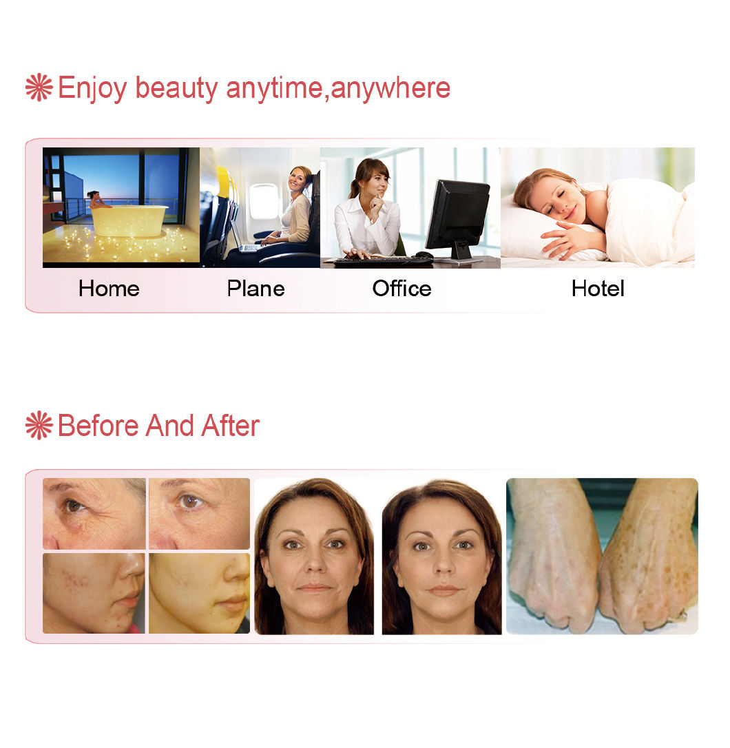 Hot Sell PDT LED Home Use Acne Removal Machine for Face