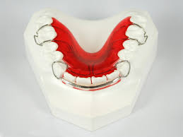 Dental Spring Retainer