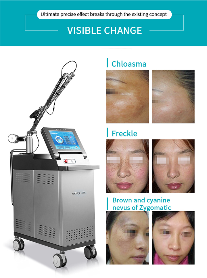 1200mj Factory Price Pigment Vertical Tattoo Removal Machine