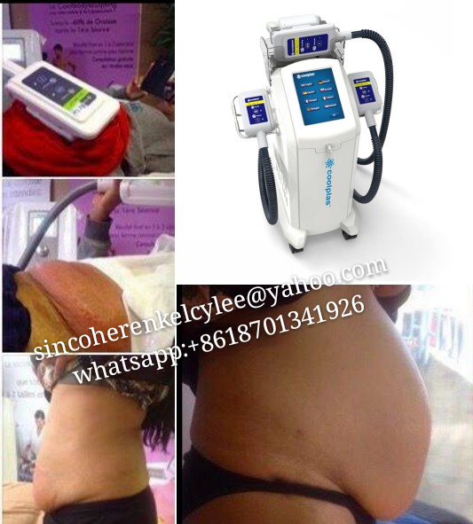 Cryolipolysis Slimming Coolsculpting Zeltiq Machine 4 Handles