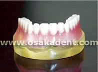 Dental Shape of Implant Teeth Teaching Model