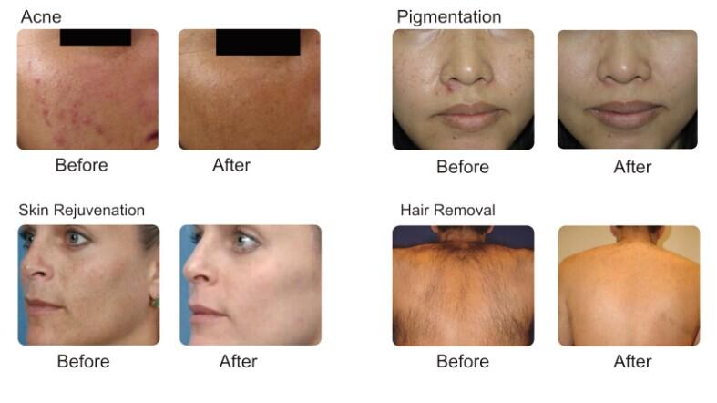 IPL Photo Rejuvenation Machine Hair Removal IPL Shr Beauty Equipment