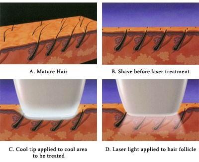 810nm Diode Laser Hair Removal Beauty SPA Skin Rejuvenation Machine