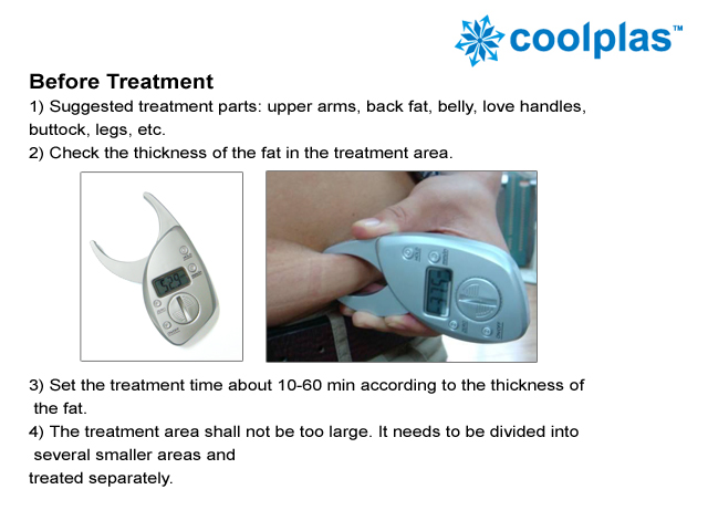 Cryo Lipolysis Fat Freezing Slimming Machine