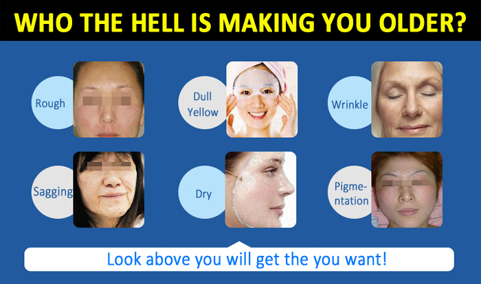 Fractional RF DOT Matrix RF Facial Wrinkle Acne Removal Machine Beauty Salon