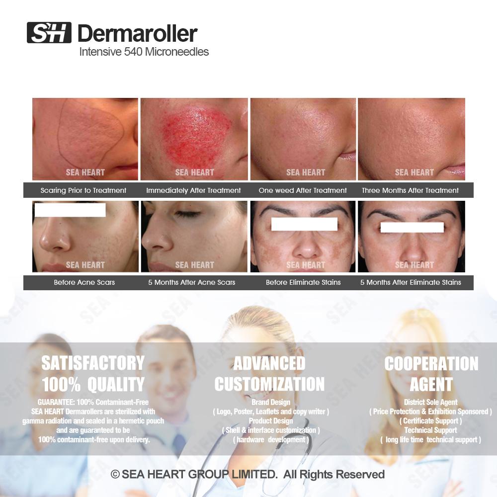 Rechargeble Permanent Makeup Machine Electric Micro Needle Dermapen for Facial Care