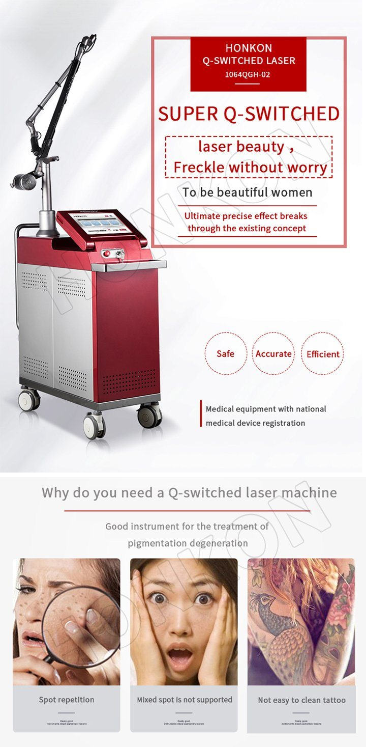 1064nm ND YAG Laser Q-Switch Tattoo Removal Pigment Removal Device