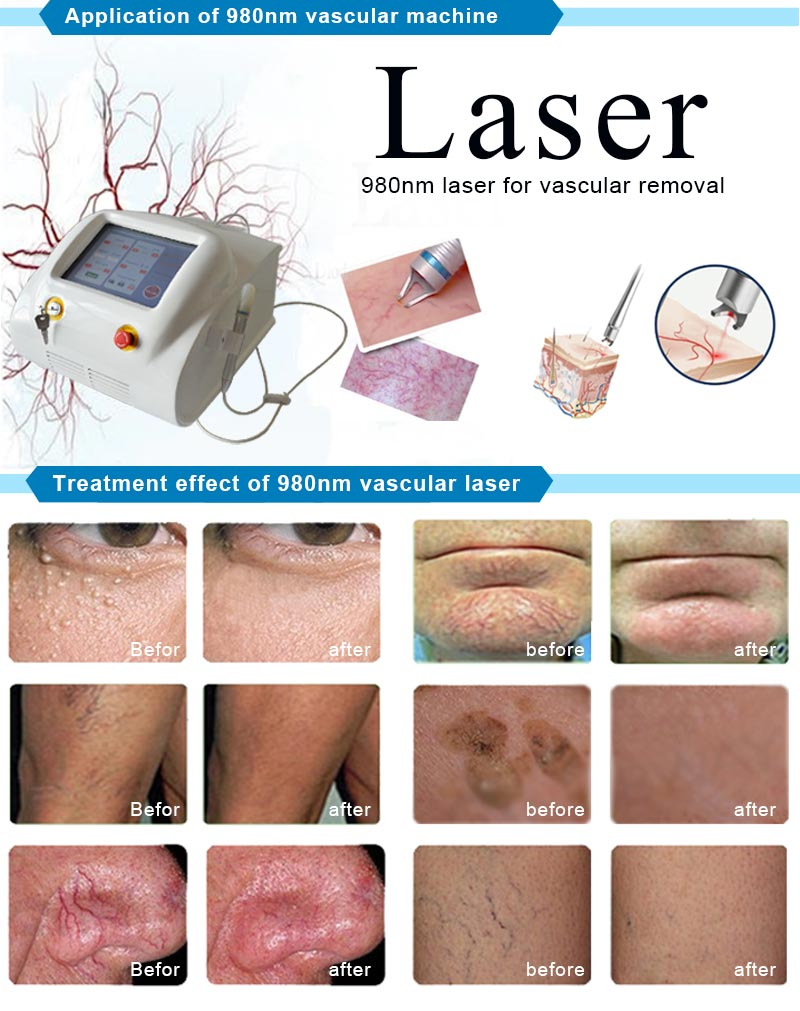Vascular Vein Removal Machine 980 Nm Laser with 2 Years Warranty