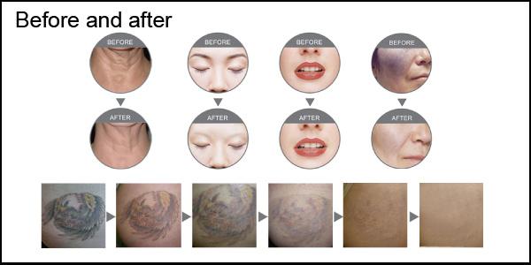 4 in 1 IPL RF E Light ND YAG Laser Hair Removal Beauty Equipment