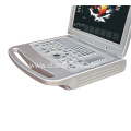 High Quality Laptop 4d Portable Color Doppler Ultrasound Machine