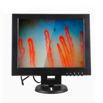 Capillaroscope Vessel Microscope Machine 12 inch LCD