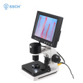 portable LED display Nailfold capillaroscope tester