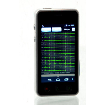 Household SCD Monitor System Dynamic Holter
