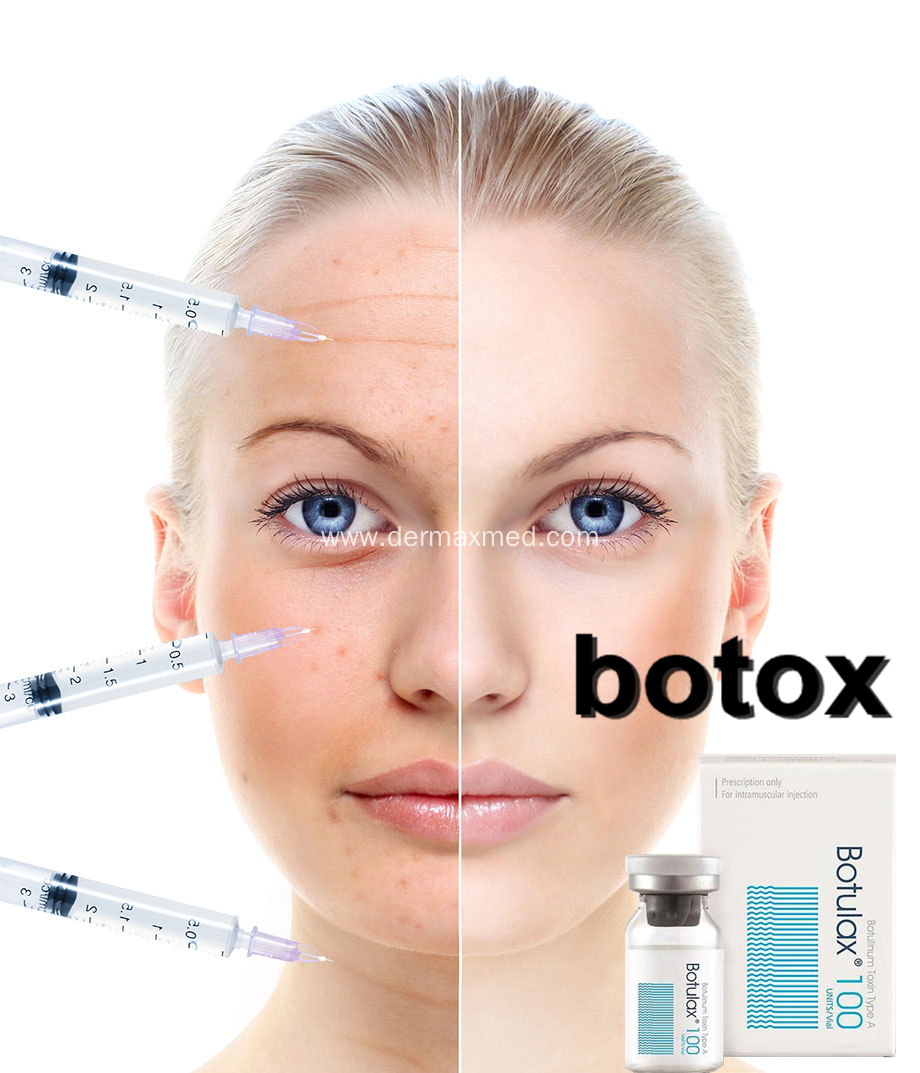 Cosmetic Dermatox Botolisem Toxin Type a for Wrinkle Injection