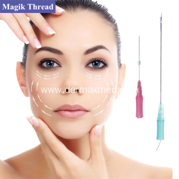PDO Thread Lift for Lower Face