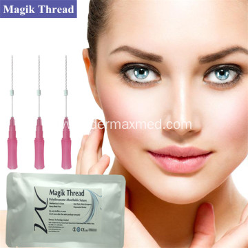 Best Lip Thread Lift for Upper Lip