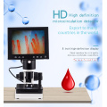 LED screen Blood Capillary microcirculation detector CE