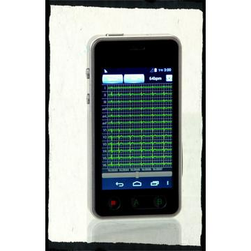 Rapid Deployment Dynamic ECG Holter