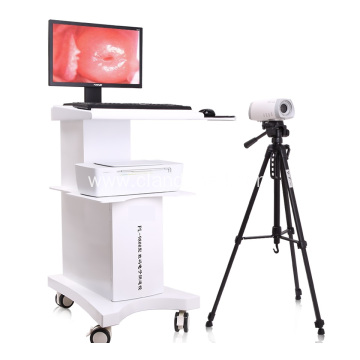 Medical Digital Portable Video Colposcope for Gynecology