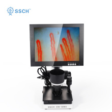 skin blood observation microcirculation detector
