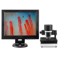 Customized for China Microcirculation Microscope,12 Inch Micirculation Microscope,Blood Capillary Microcirculation Supplier 12Inch blood capillary microcirculation microscope export to Nauru Supplier