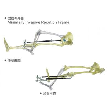 Minimally Invasive Reduction Frame for Fracture