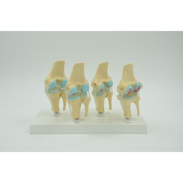 LESION KNEE JOINT MODEL