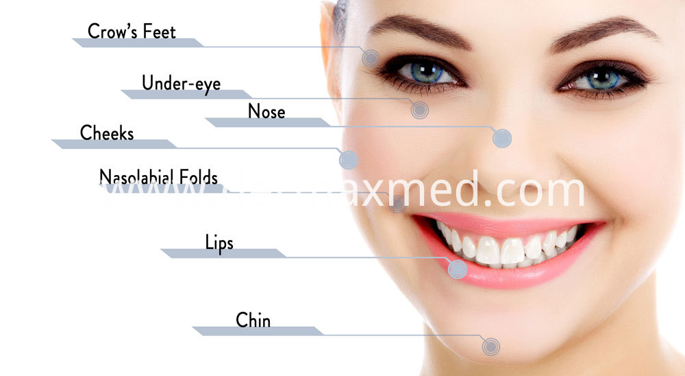 Dermal+Filler+Areas+of+Injection